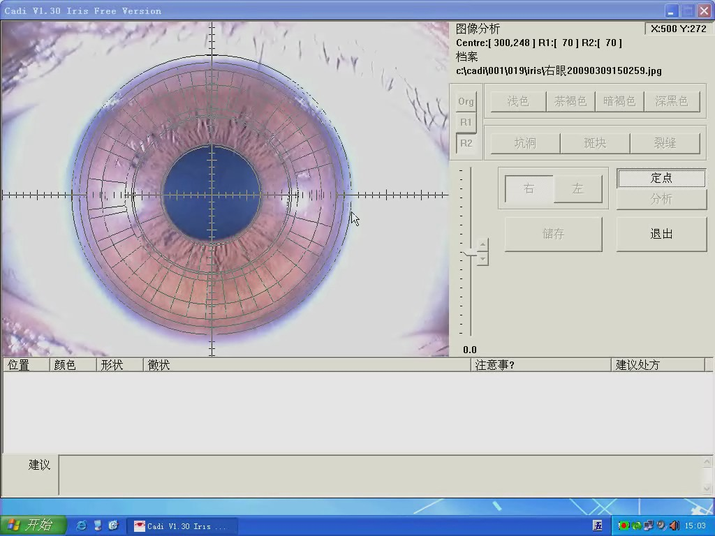 DM9988U free iridology software video 3