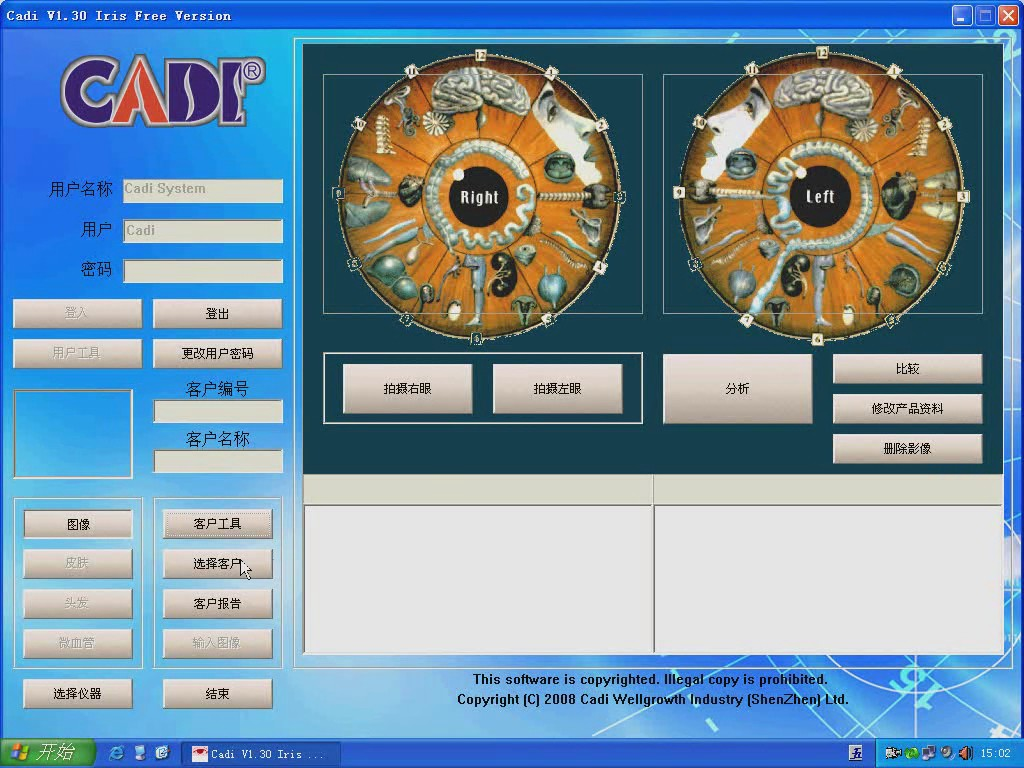 DM9988U free iridology software video