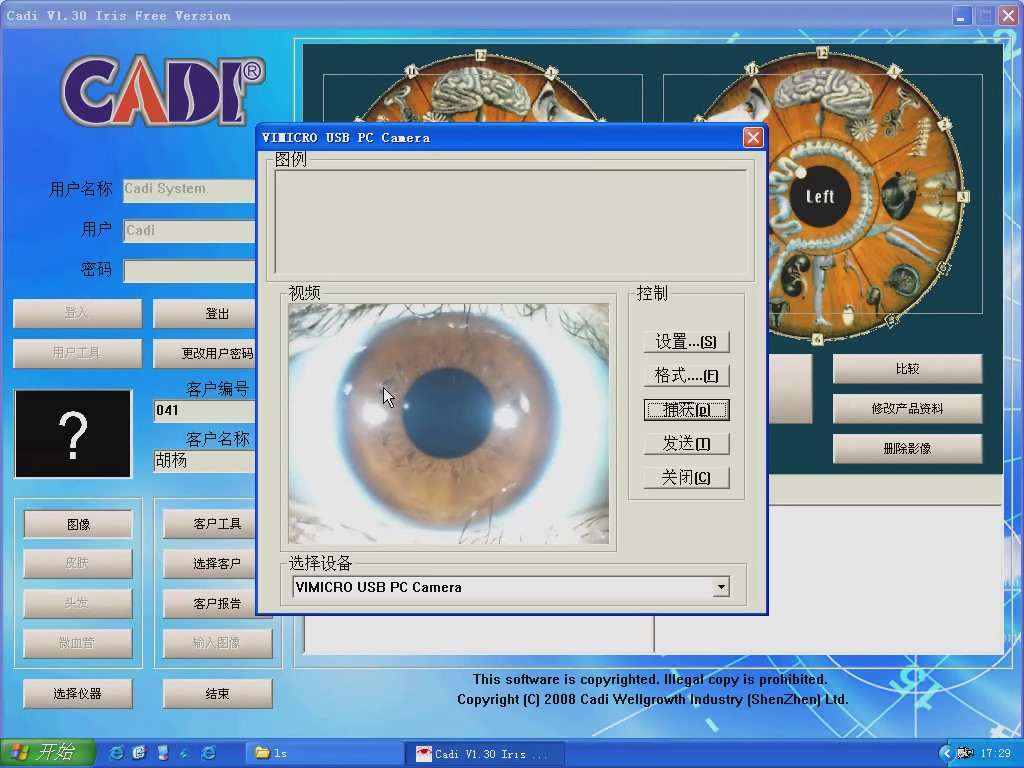 free iridologic software video for DM888U2