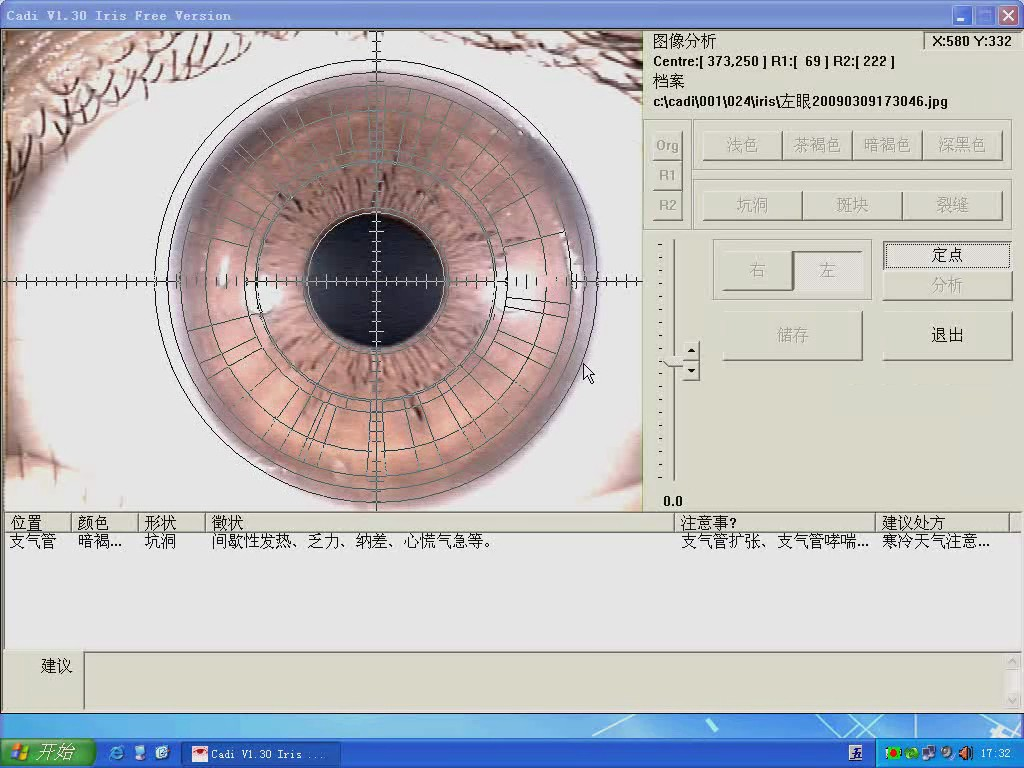how to use the free iridology software for 880AU video teaching
