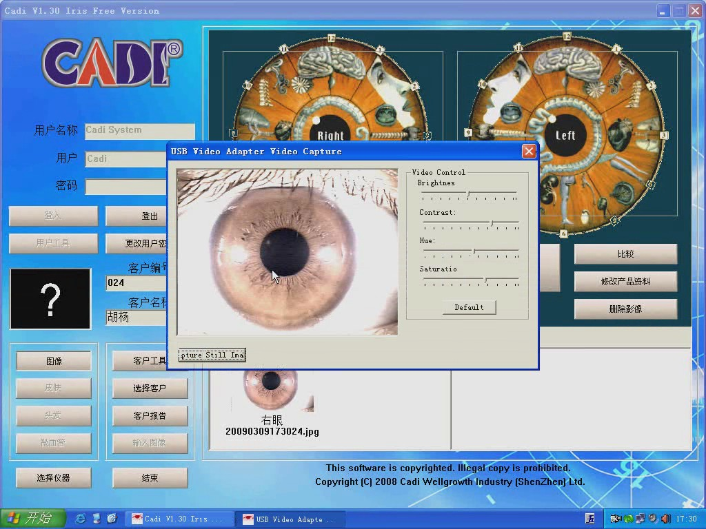 how to use the free iridology software for DM880AU video teaching