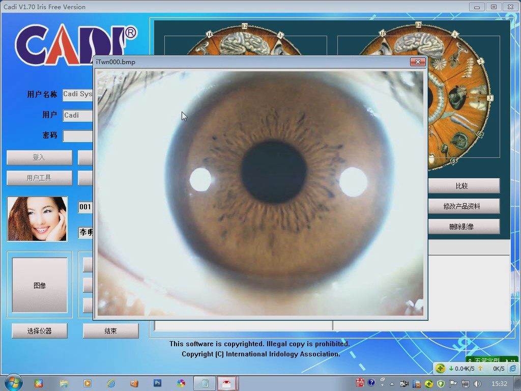 iridology camera software video